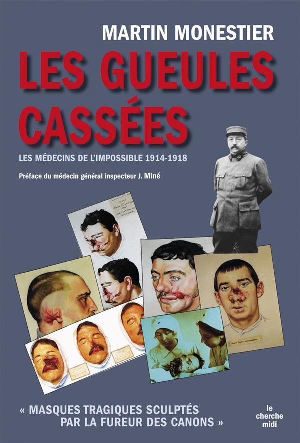 Les Gueules Cassees ; Les Medecins De L'Impossible, 1914-1918