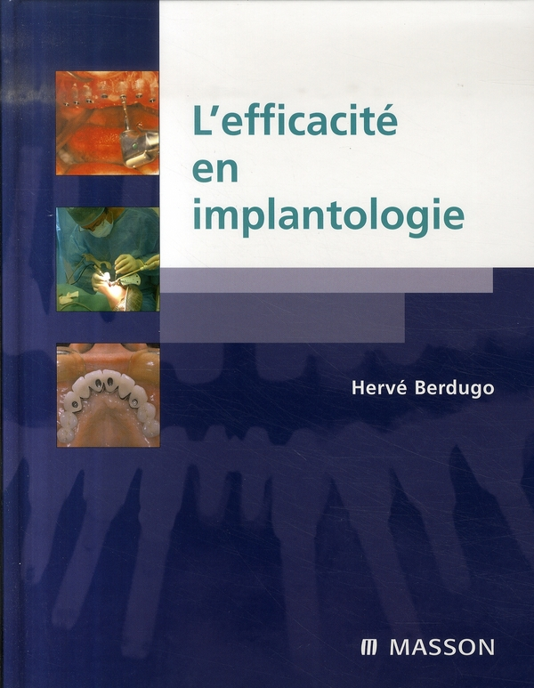 L'Efficacite En Implantologie